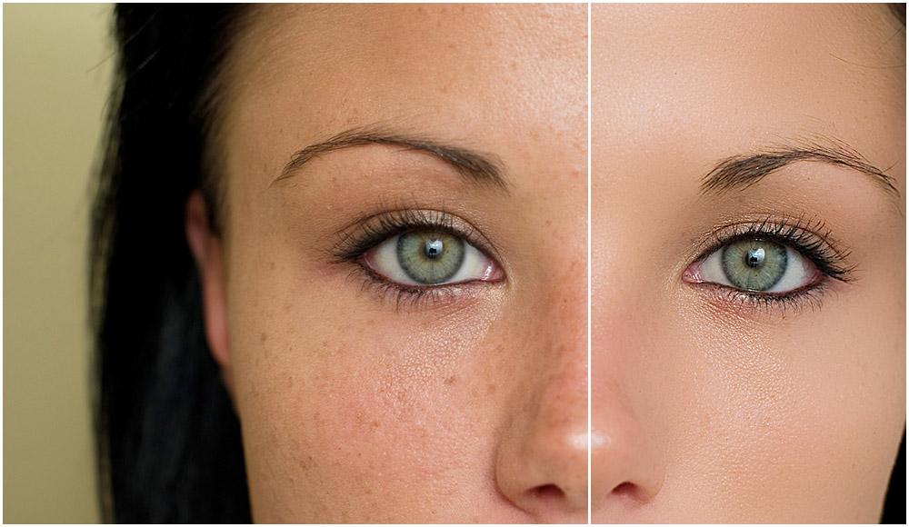 30 Manfaat Santan Kelapa untuk Kesehatan dan Kecantikan Yang Wajib Anda Ketahui 1